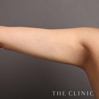 THE CLINIC(ザ・クリニック)福岡院の二の腕のベイザー脂肪吸引の症例写真(アフター)