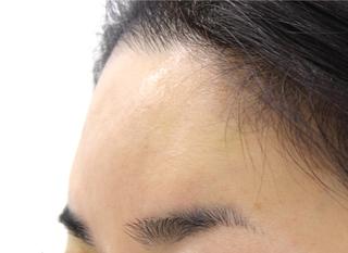 MIYAフェイスクリニックの額・ヒアルロン酸注入の症例写真(アフター)