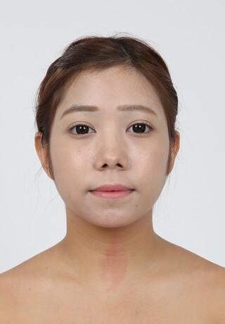 バノバギ整形外科の輪郭2点、鼻手術+骨切幅寄せ+小鼻縮小の症例写真(ビフォー)