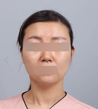 TL美容クリニック リフティング・皮膚管理センターのパワーVリフティング / 糸リフトの症例写真(ビフォー)