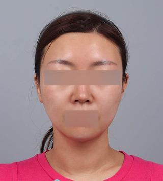TL美容クリニック リフティング・皮膚管理センターのパワーVリフティング / 糸リフトの症例写真(アフター)