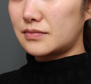 オザキクリニックLUXE新宿のメーラーファットFITリフトの症例写真(ビフォー)