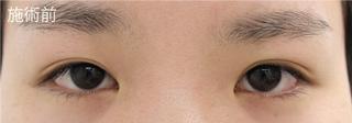 MIYAフェイスクリニックの埋没重瞼(3点埋没法)の症例写真(ビフォー)