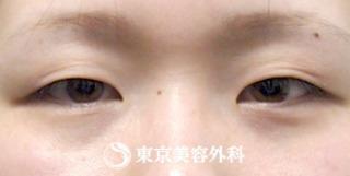 東京美容外科 東京新宿院の切開二重(全切開)&まぶたの脂肪取りの症例写真(ビフォー)