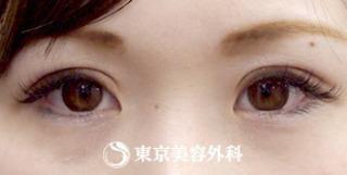 東京美容外科 東京新宿院の切開二重(全切開)&まぶたの脂肪取りの症例写真(アフター)