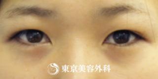東京美容外科 東京新宿院の二重切開の症例写真(ビフォー)