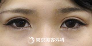 東京美容外科 東京新宿院の二重切開の症例写真(アフター)