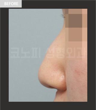 CONOPI (コノピ)整形外科のコノピの無プロテーゼ整形の症例写真(ビフォー)
