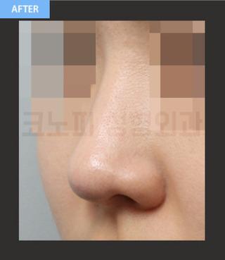 CONOPI (コノピ)整形外科のコノピの団子鼻(低い鼻)の症例写真(アフター)