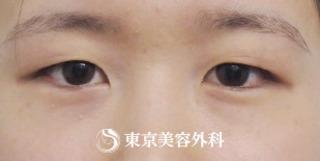 東京美容外科 東京銀座院の二重埋没の症例写真(ビフォー)