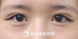 東京美容外科 東京新宿院の二重埋没の症例写真(アフター)