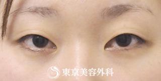 東京美容外科 東京銀座院の埋没二重(4点留め)、まぶたの脂肪取りの症例写真(ビフォー)