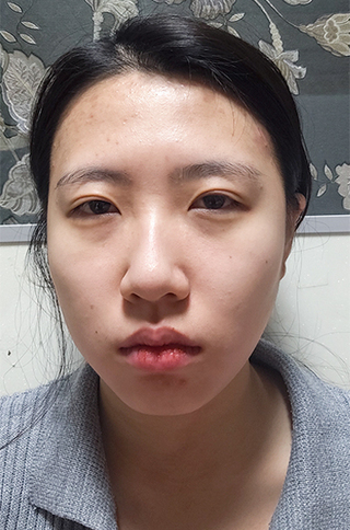 TN整形外科のフルフェイス脂肪移植、ノースカ鼻整形、目頭切開、目つき矯正、顎フィラーの症例写真(ビフォー)