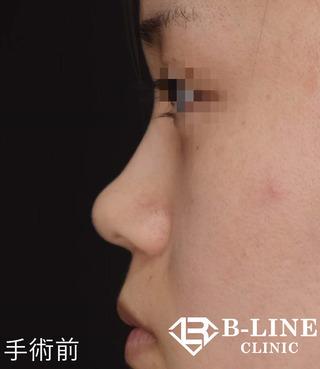 B-LINE CLINICのBL式鼻尖形成術+鼻ヒアルロン酸注入  手術1ヵ月後の症例写真(ビフォー)