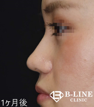 B-LINE CLINICのBL式鼻尖形成術+鼻ヒアルロン酸注入  手術1ヵ月後の症例写真(アフター)