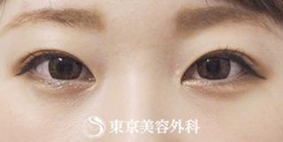 東京美容外科 東京銀座院の埋没二重(4点留め)、まぶたの脂肪取りの症例写真(アフター)