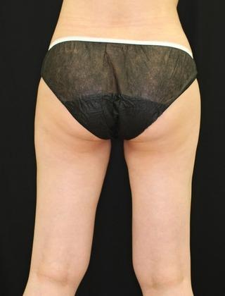 セオリークリニックの切らない脂肪吸引(クールスカルプティング リポセル)の症例写真(ビフォー)