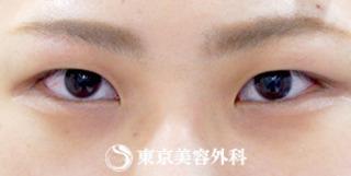 東京美容外科 東京銀座院の埋没二重(4点留め)の症例写真(ビフォー)