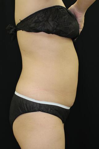 セオリークリニックの切らない脂肪吸引(クールスカルプティング)の症例写真(アフター)