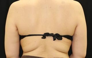 セオリークリニックの切らない脂肪吸引(クールスカルプティング スカルプシュア)の症例写真(ビフォー)