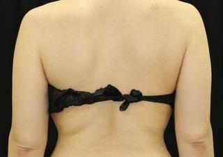 セオリークリニックの切らない脂肪吸引(クールスカルプティング スカルプシュア)の症例写真(アフター)