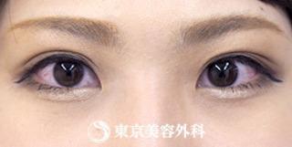 東京美容外科 東京銀座院の埋没二重(4点留め)の症例写真(アフター)