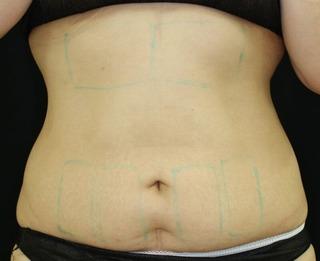 セオリークリニックの切らない脂肪吸引(クールスカルプティング)の症例写真(ビフォー)