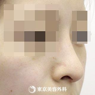 東京美容外科 東京新宿院の鼻尖形成、鼻中隔延長(切開法+軟骨移植)、鼻骨骨切り、鷲鼻削り(ハンプ削り)の症例写真(アフター)
