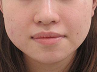 福岡TAクリニックの鼻翼縮小術(内側法)+ 鼻孔縁挙上術の症例写真(ビフォー)