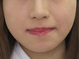 福岡TAクリニックの鼻翼縮小術(内側法)+ 鼻孔縁挙上術の症例写真(アフター)