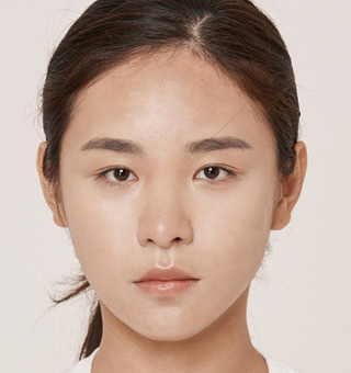 ITEM美容(整形)外科の目の再手術 / 脂肪移植の症例写真(ビフォー)