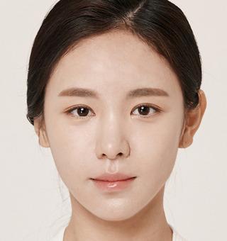 ITEM美容(整形)外科の目の再手術 / 脂肪移植の症例写真(アフター)