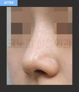 CONOPI (コノピ)整形外科の豚鼻整形の症例写真(アフター)