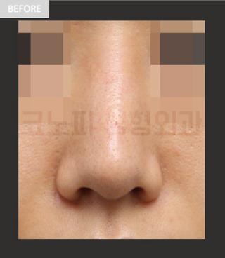 CONOPI (コノピ)整形外科の鼻再手術(曲がった鼻)の症例写真(ビフォー)