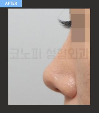 CONOPI (コノピ)整形外科の鼻再手術(曲がった鼻)の症例写真(アフター)