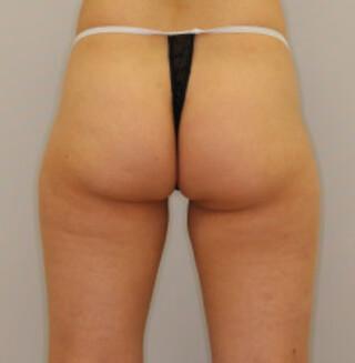 セオリークリニックの切らない脂肪吸引(リポセル)の症例写真(ビフォー)