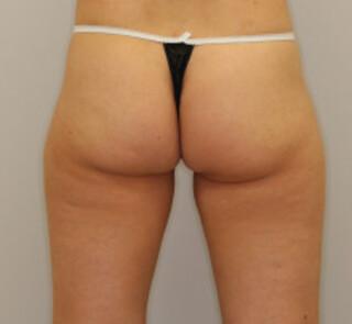 セオリークリニックの切らない脂肪吸引(リポセル)の症例写真(アフター)