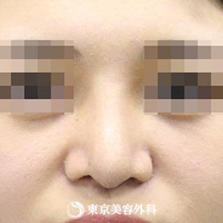 東京美容外科 東京新宿院の鼻尖形成(軟骨移植)・隆鼻術(シリコンプロテーゼ)の症例写真(アフター)