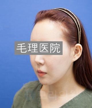 毛理(モリ)自毛植毛クリニックの女性の生え際植毛(FUE) in 韓国モリ自毛植毛クリニックの症例写真(ビフォー)