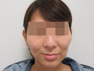 福岡TAクリニックのTAC式ツヤ肌コラーゲンリフト+バッカルファット除去の症例写真(ビフォー)