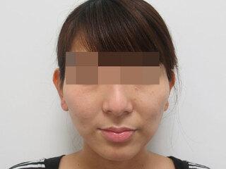 福岡TAクリニックのTAC式ツヤ肌コラーゲンリフト+バッカルファット除去の症例写真(アフター)