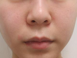 福岡TAクリニックの人中短縮術+鼻尖縮小術(内側法)+ 4Dノーズ+ 鼻翼縮小術(内側法)+ 鼻孔縁挙上術の症例写真(ビフォー)