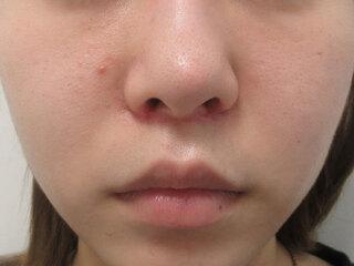 福岡TAクリニックの人中短縮術+鼻尖縮小術(内側法)+ 4Dノーズ+ 鼻翼縮小術(内側法)+ 鼻孔縁挙上術の症例写真(アフター)