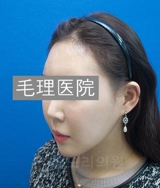 毛理(モリ)自毛植毛クリニックの女性の生え際植毛(FUE) in 韓国モリ自毛植毛クリニックの症例写真(アフター)