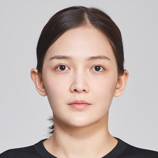 グランド整形外科の鼻筋+鼻先, 鼻フィラー除去, 脂肪移植術(額), 頬骨縮小術の症例写真(ビフォー)