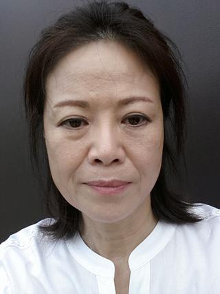 グランド整形外科の眉下挙上術, 下眼瞼再配置(se), 鼻先彫刻術, Macs, Neck リフト, 脂肪移植(額, 眉間, ほうれい線), フィラー(上唇)の症例写真(ビフォー)