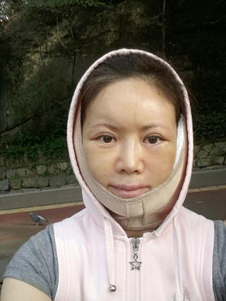 グランド整形外科の眉下挙上術, 下眼瞼再配置(se), 鼻先彫刻術, Macs, Neck リフト, 脂肪移植(額, 眉間, ほうれい線), フィラー(上唇)の症例写真(アフター)