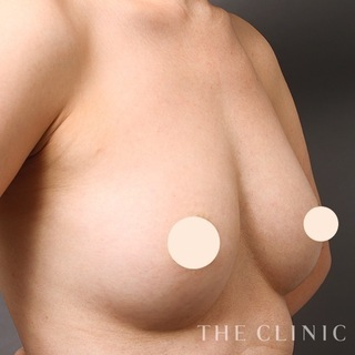 THE CLINIC(ザ・クリニック)東京院のヒアルロン酸豊胸の失敗修正(ヒアルロン酸除去+脂肪注入豊胸)の症例写真(アフター)