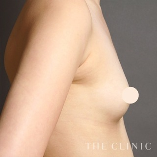 THE CLINIC(ザ・クリニック)福岡院のコンデンスリッチ豊胸の症例写真(ビフォー)