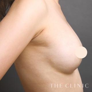 THE CLINIC(ザ・クリニック)福岡院のコンデンスリッチ豊胸の症例写真(アフター)